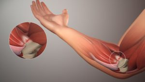 Can massage help with tendonitis?